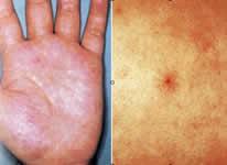 湿疹 胸谷間 【医師監修】胸のニキビの原因と皮膚科での治し方