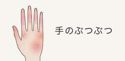 手のぶつぶつ